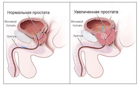 Симптомы хранического простатита
