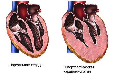 Кардиомиопатия: виды, симптомы, лечение