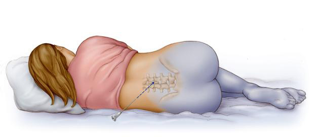 Эпидуральная анестезия в родах: показания, противопоказания, последствия