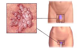 Остроконечные кондиломы: фото, лечение, осложнения