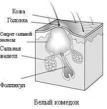 Акне: симптомы, диагностика, лечение