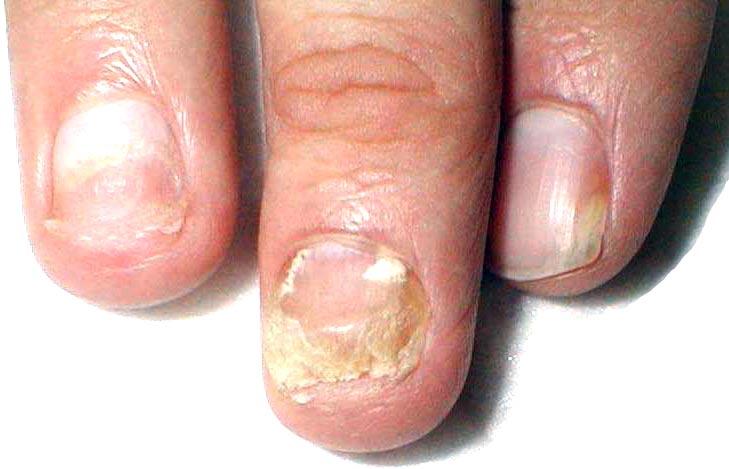 Onychomycosis (img thanks to diagnos.ru) .