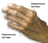 Остеоартроз симптомы и лечение
