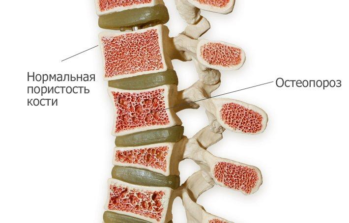 Остеопороз позвоночника: симптомы, лечение, упражнения