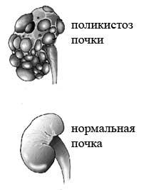 Поликистоз почек симптомы диагностика лечение поликистоз почки
