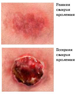 Санатории для лечения болезни бехтерева в крыму