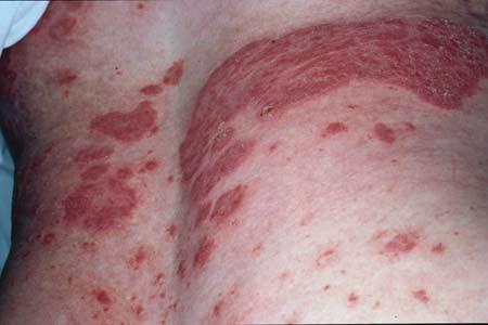 psoriaz-artropaticheskiy-differentsialniy-diagnoz
