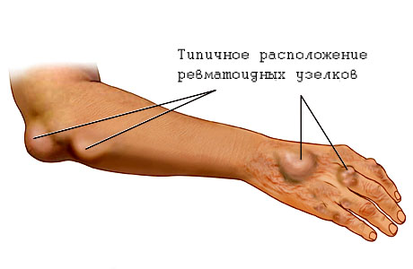 Ревматизм симптомы