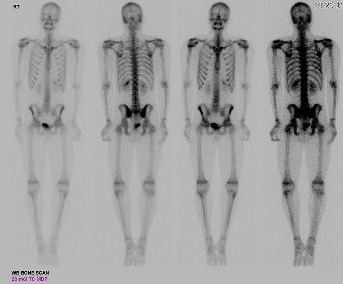 Как сделать сканирование скелета