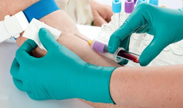 Как остановить кровь с вены