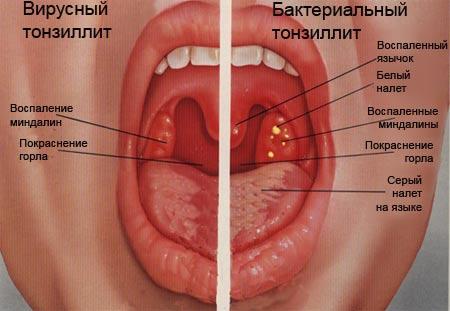 неприятный запах изо рта причины как избавиться