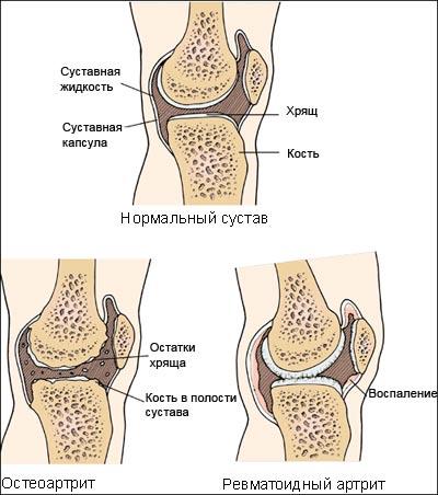 Ревматоидный артрит: симптомы, диагностика, лечение