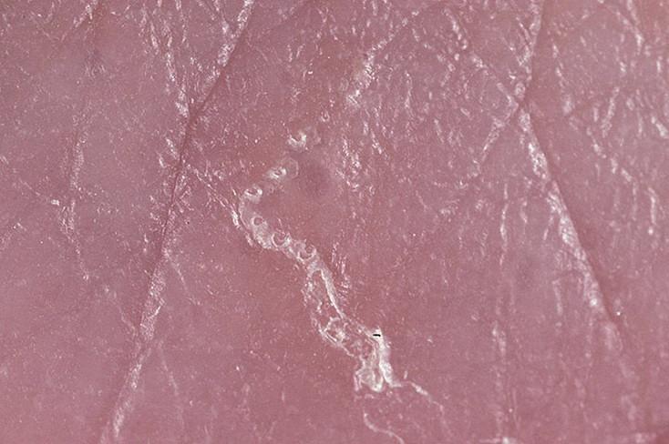 чесоточный клещ фото