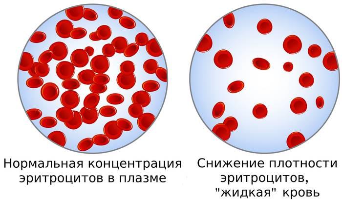 фото: эритроциты в плазме при сниженном гематокрите