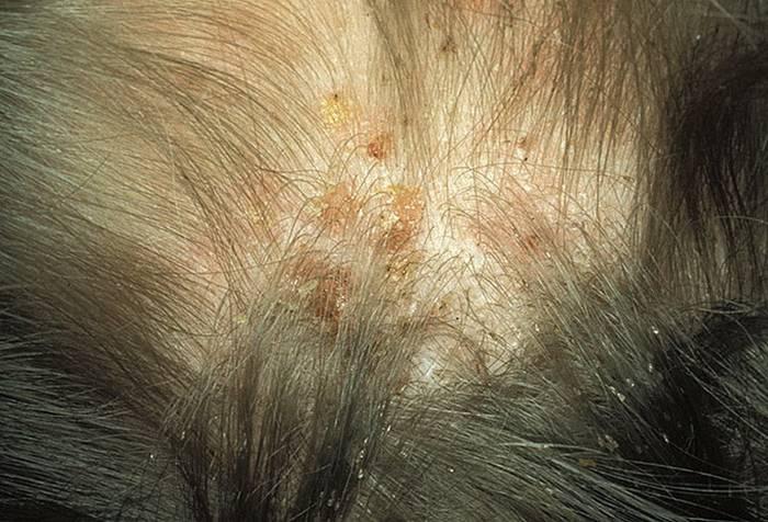 Лобковый педикулез - причины и признаки лобкового педикулез