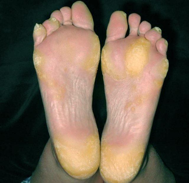 Гиперкератоз кожи: виды, признаки, лечение