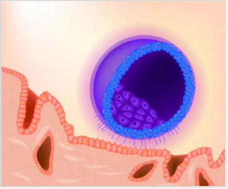 фото: кровотечение в результате имплантации будущего эмбриона в полость матки