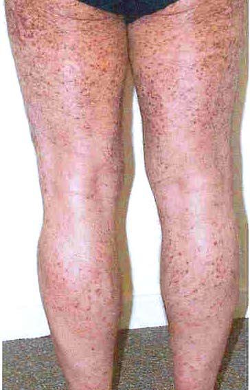 Мастоцитоз: симптомы, диагностика, лечение - Diagnos.ru