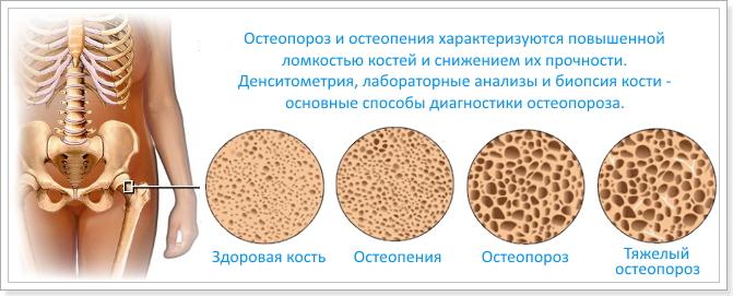 Изображение - Что такое остеопороз и остеоартроз суставов лечение osteoporoz_sustavov