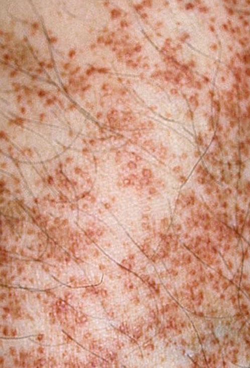 Болезнь, шамберга : причины, симптомы, лечение и фото