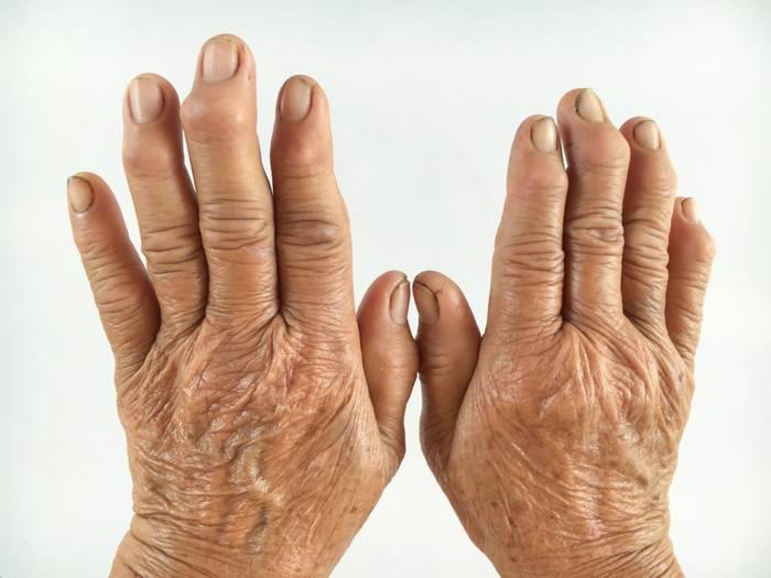 Ревматоидный артрит симптомы причины лечение