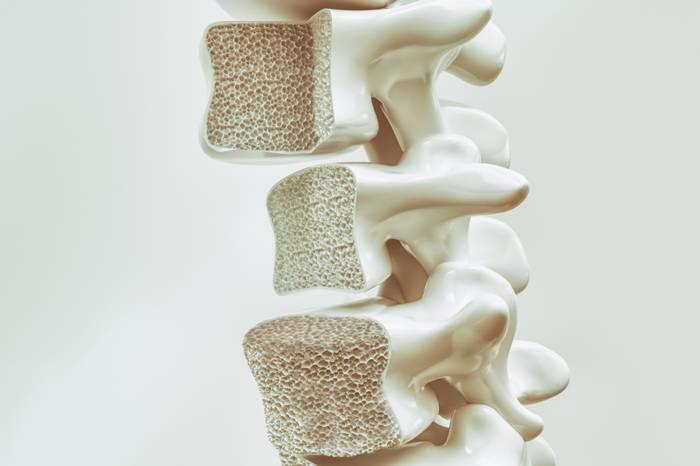 Остеопороз позвоночника симптомы и лечение медикаментозное и эффективное