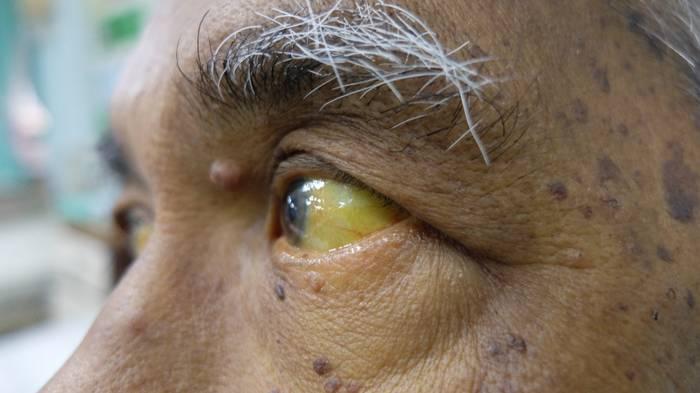 Что такое болезнь Боткина и ее последствия для женщин и мужчин?