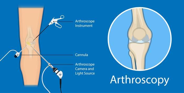 Артроскопия как эффективный метод диагностики и лечения коленного сустава
