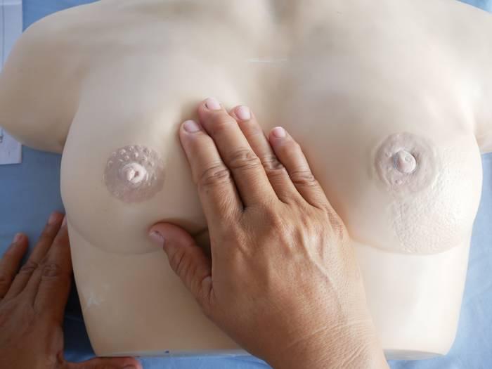 Симптом умбиликации при раке молочной железы