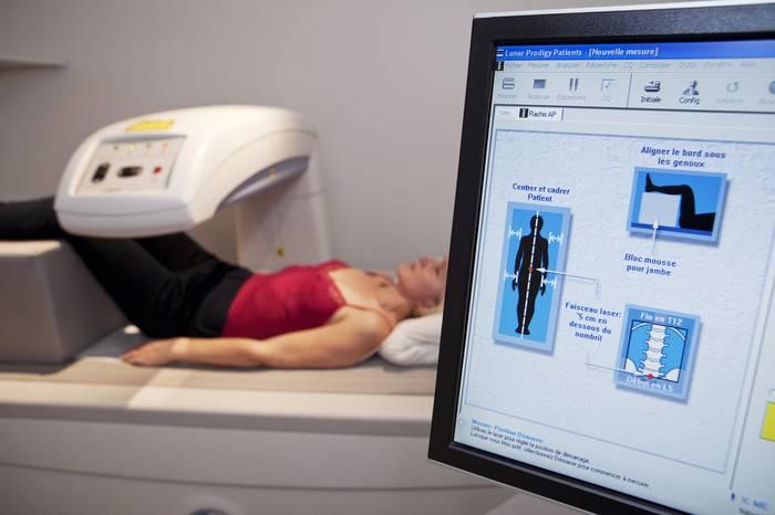 Остеометрия костей как проводится - диета, показатели, причины и диагностика, продукты