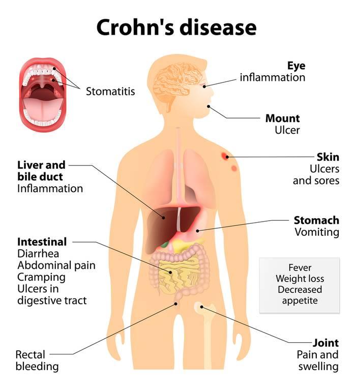 Болезнь крона, лечение народными средствами. Как лечить болезнь крона народными средствами