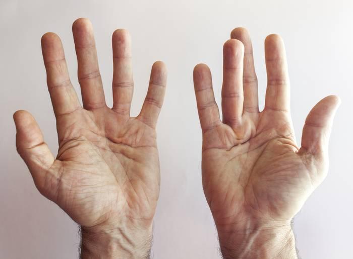 Уплотнение на ладони левой руки