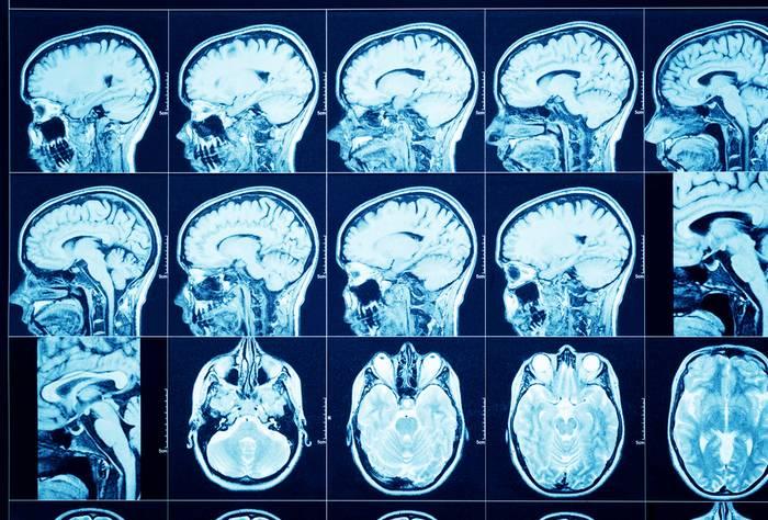 Компьютерная томография опухоль головного мозга
