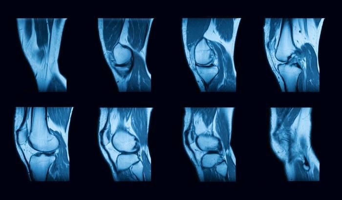 МРТ коленного сустава: как делают, показания и противопоказания