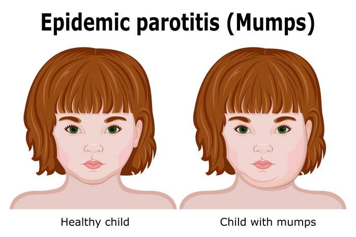 Паротит: что такое эпидемический паротит (свинка), паротит у детей