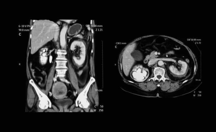 КТ брюшной полости - цены, сделать компьютерную томографию органов брюшной полости с контрастом в «СМ-Клиника»