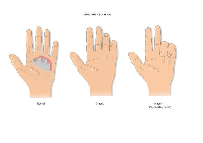 Контрактура Дюпюитрена: симптомы, диагностика, лечение