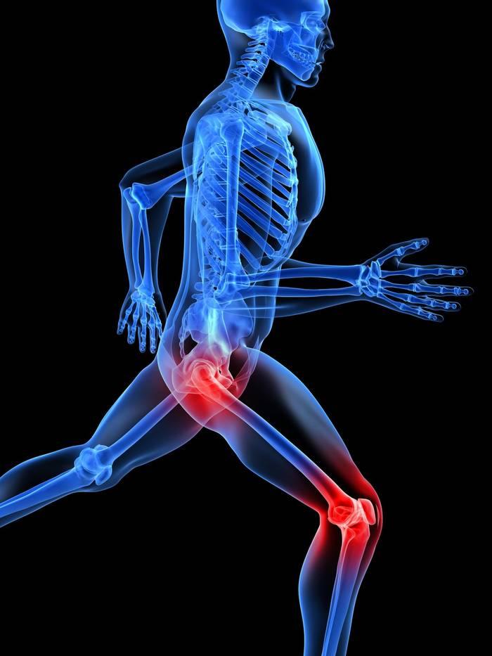 Болят ли суставы при остеопорозе агар агар лечение суставов