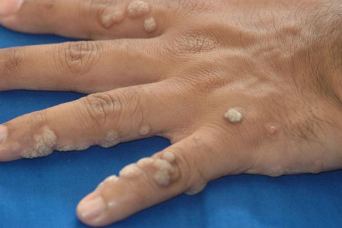 ВПЧ (вирус папилломы человека): типы, проявления, лечение